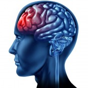 Bolile sistemului nervos (4)