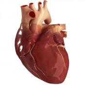 Boli cardiovasculare (2)