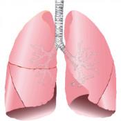 Bolile aparatului respirator (9)
