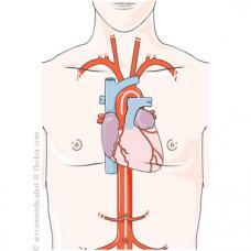 Afectiunile cardiace