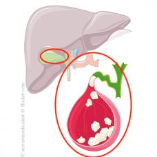 Calculoza biliară (litiaza)