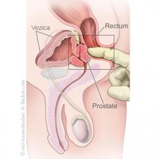 Cel mai eficient remediu in tratarea afectiunilor prostatei