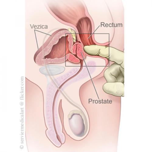prostatită cronică și erecție